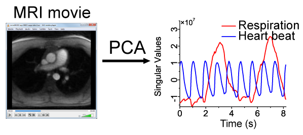 on the left is a still image from an MRI of a chest with the heart and lungs visible. On the right is a graph with the quick heartbead and slower respiration plotted as curves.